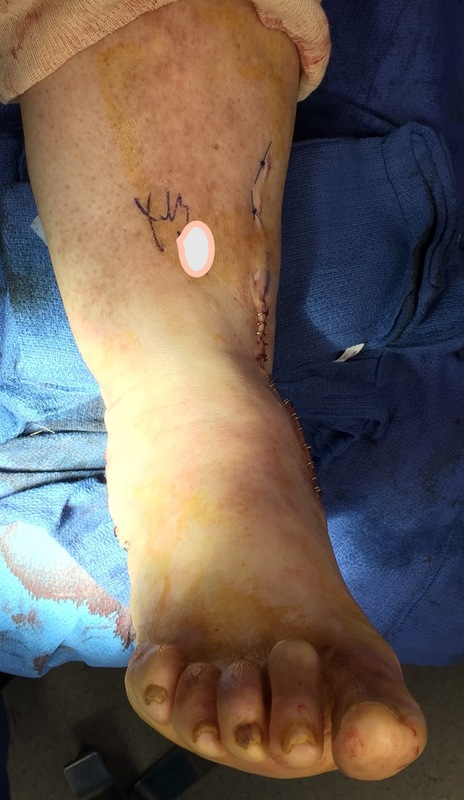 Foot & Ankle Deformity Correction After