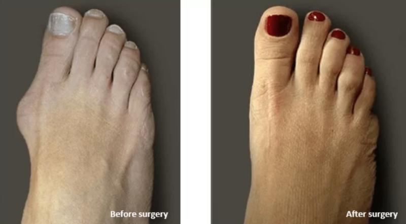 Bunions Before & After